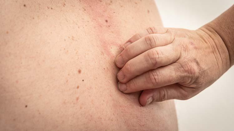 Korrigering af rygsøjle uden knæk og bræk - Dorn terapi hos Av min krop